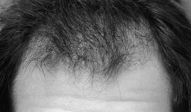 princess hair haarmasker